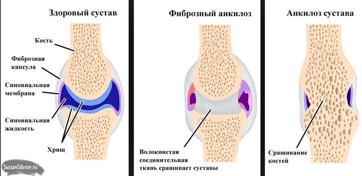 Анкилоз суставов