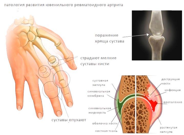 Ревматоидный артрит - одна из причин болей в пятке