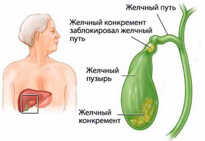 Болезни желчного пузыря - возможная причина боли в правом подреберье