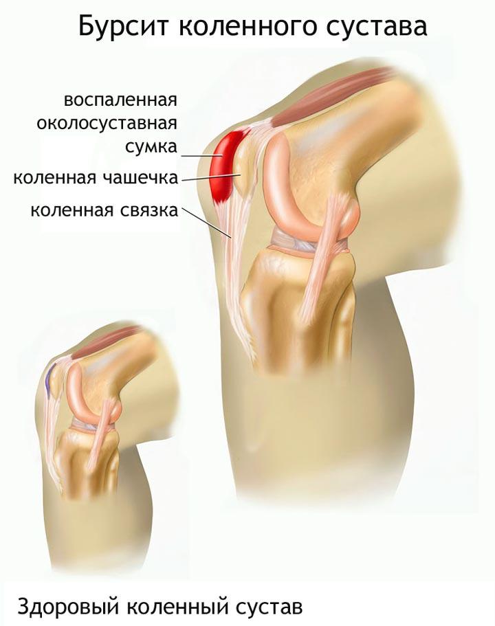 Бурсит коленного сустава из-за артрита