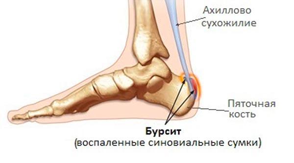 Бурсит -болезнь воспалительного характера