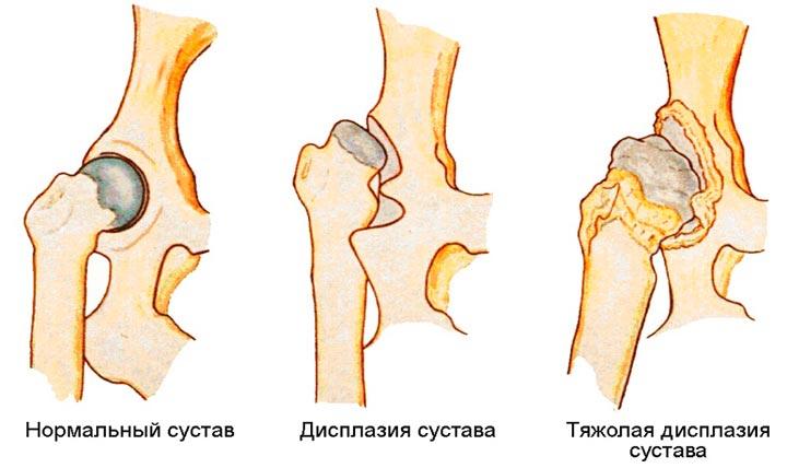 Заболевание дисплазия тазобедренного сустава