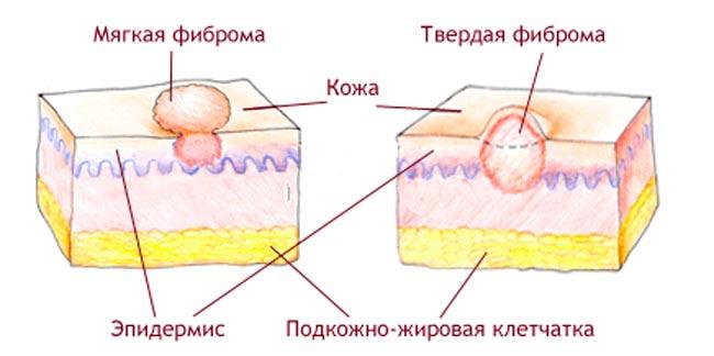 Фиброма - причина - шишки на шее