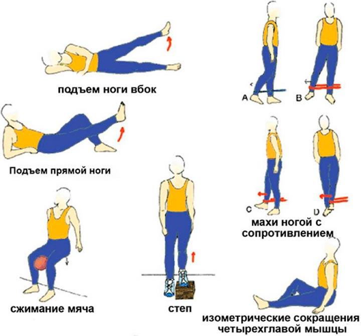 Физкультура при артрите