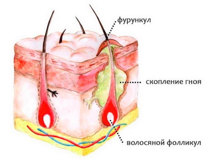 Фурункул - причина шишки на шее