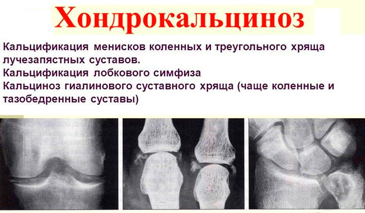 Изображение - Противовоспалительные препараты для суставов таблетки Hondrokaltsinoz