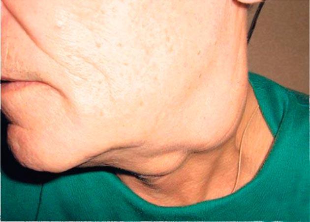 Метастазы - причина шишки на шее