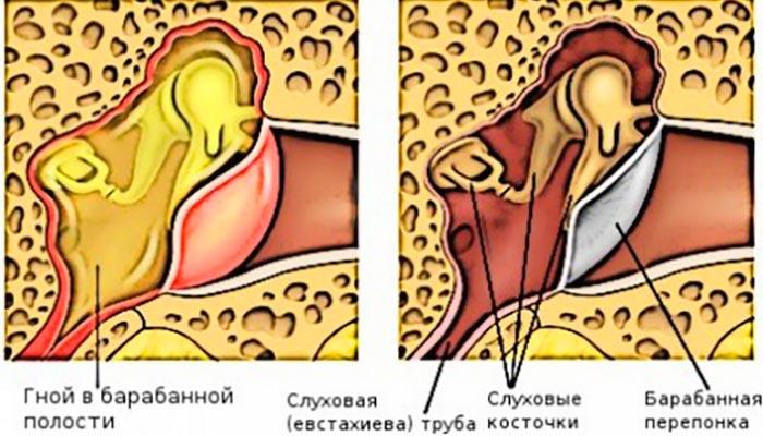 Нагноение среднего уха может вызвать артрит
