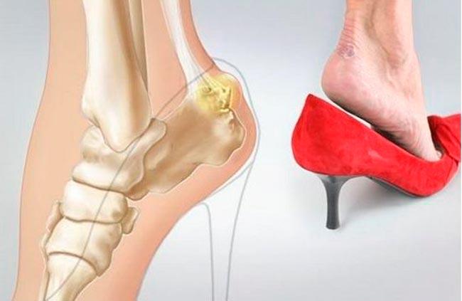 Остеомиелит пяточной кости - одна из видов инфекционных болезней