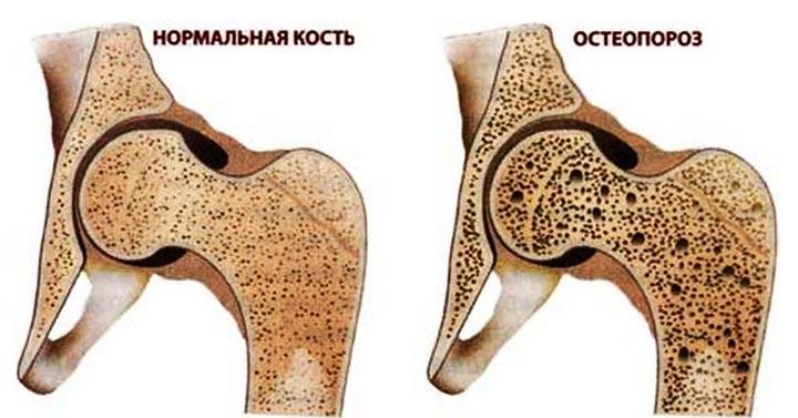 Остеопороз - один из симптомов артрита коленного сустава
