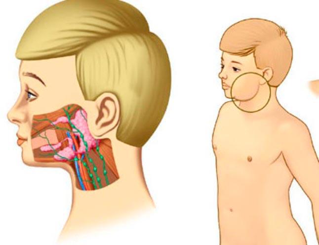 Паротит - причина шишки на шее