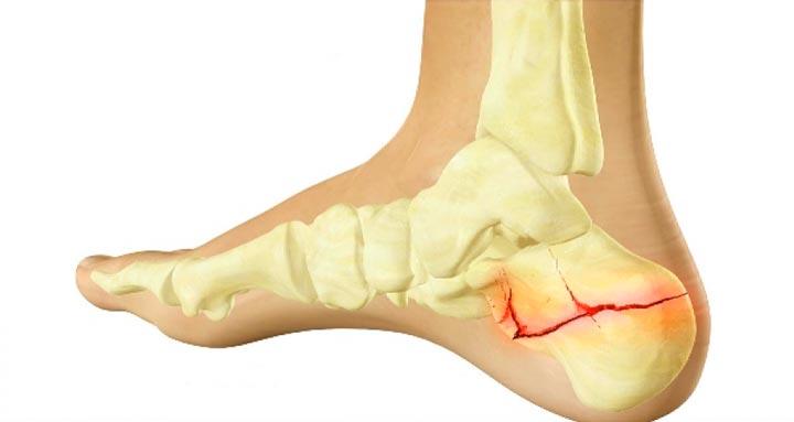 Перелом пяточной кости вызывает сильные боли в пятке