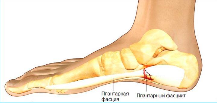 Плантарный фасциит - одна из причин боли в пятке