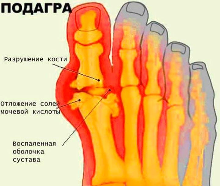 Подагра - одна из причин болей в пятке