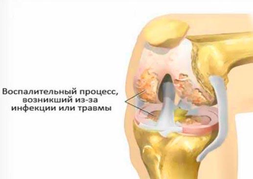 Полиартрит коленного сустава ноги