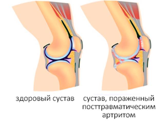 Посттравматический гонартроз - возможная причина артрита