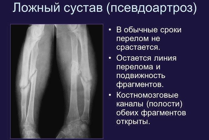 Изображение - Противовоспалительные препараты для суставов таблетки Psevdoartroz
