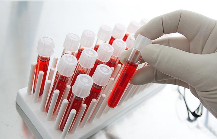 серологические анализы крови