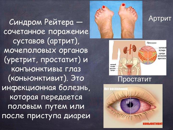 Изображение - Противовоспалительные препараты для суставов таблетки Sindrom_Rejtera