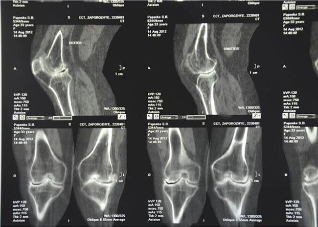 Томография как метод диагностики артрита