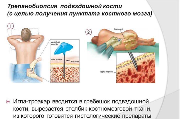 Процедура трепанобиопсии