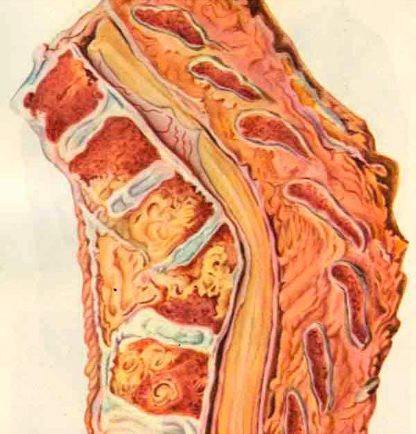 Туберкулез кости - одно из инфекционных заболеваний