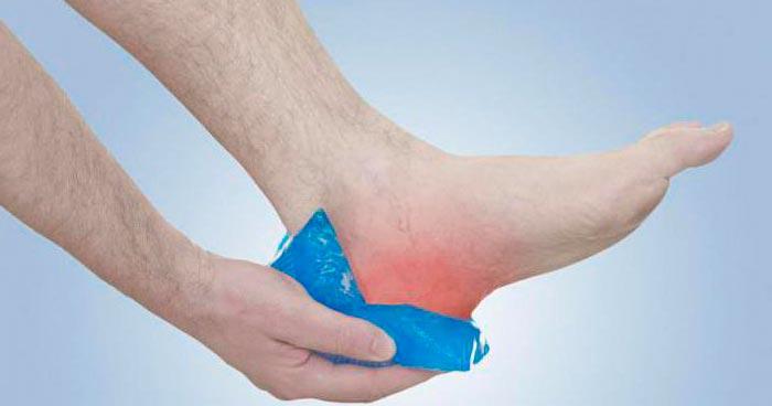 Ушиб пяточной кости - причина боли в пятке