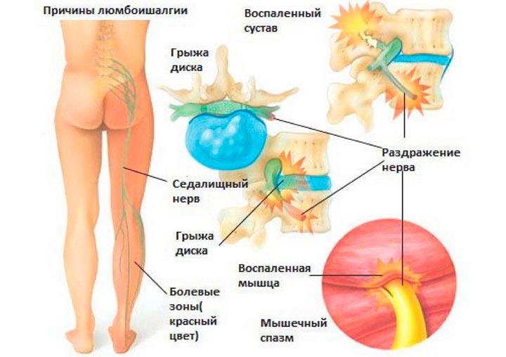 Воспаление седалищного нерва человека
