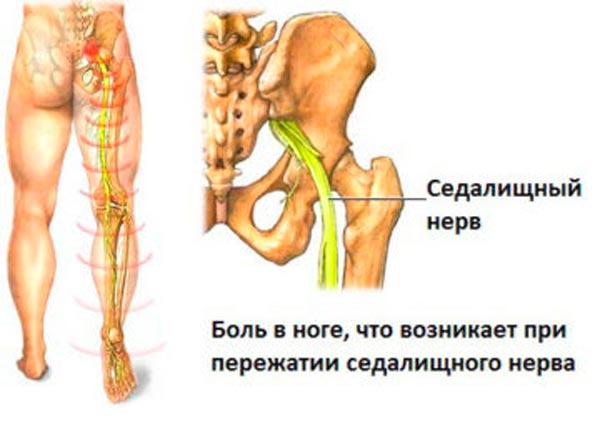 Защемление седалищного нерва у человека