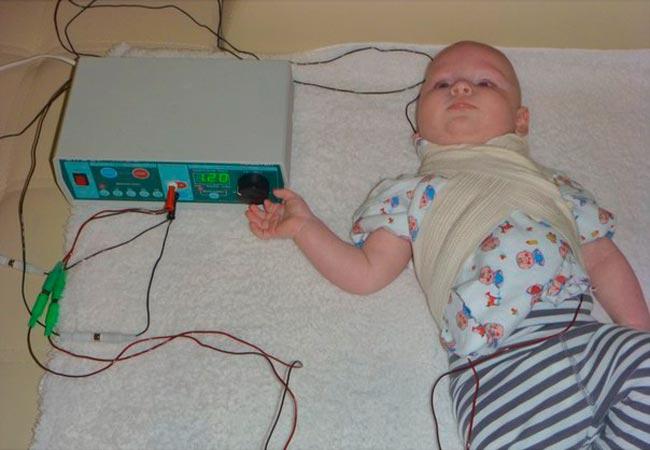 Электроды не крепят на малышей, а заматывают бинтами для надежной фиксации
