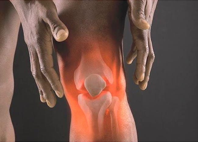 Изображение - Противовоспалительные препараты для суставов таблетки artrit-1
