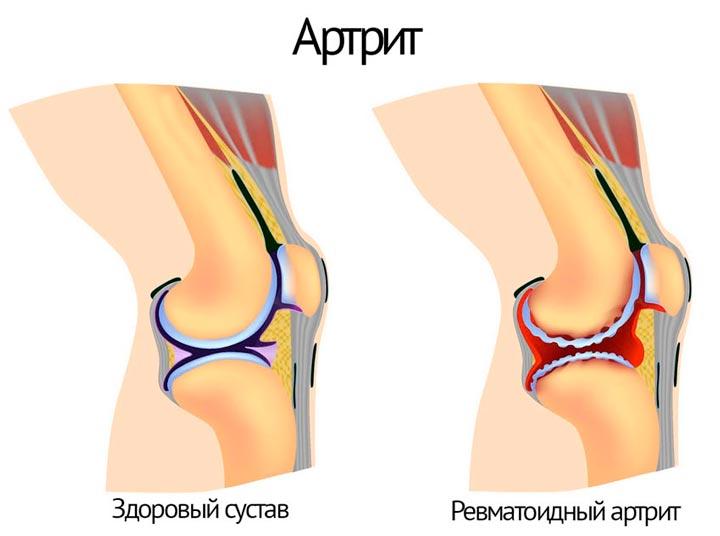 Что представляет собой артрит коленного сустава