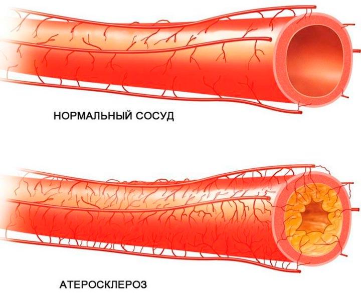 Атеросклероз сосудов - одна из причин аномалии Киммерли