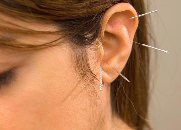 Введения игл в биологически активные точки ушей – аурикулотерапия