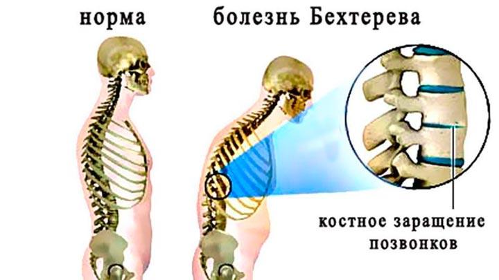 Болезнь Бехтерева – воспаление суставов и позвоночника