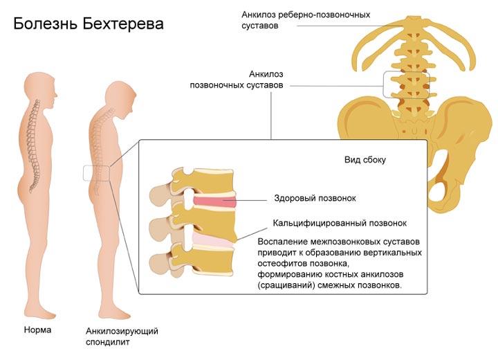 Болезнь Бехтерева - одна из причин артрита