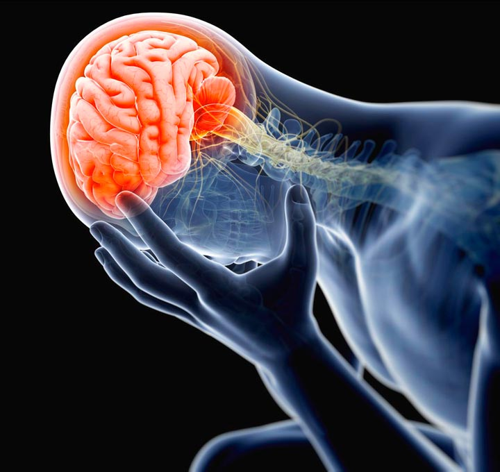 Травмы головы, черепа, мозга
