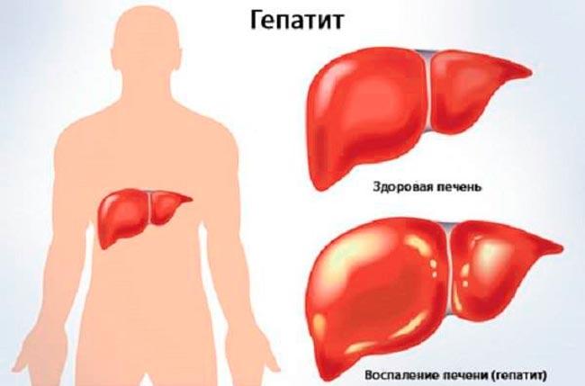 Гепатит может стать причиной артрита