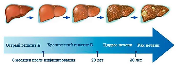При хронических заболеваниях печени возникает тупая ноющая боль в правом подреберье