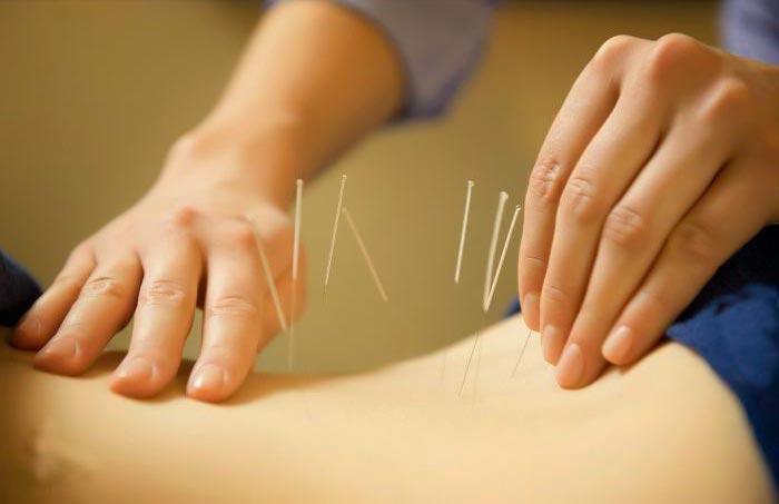 Иглоукалывание - процедура от болей в подвздошной области