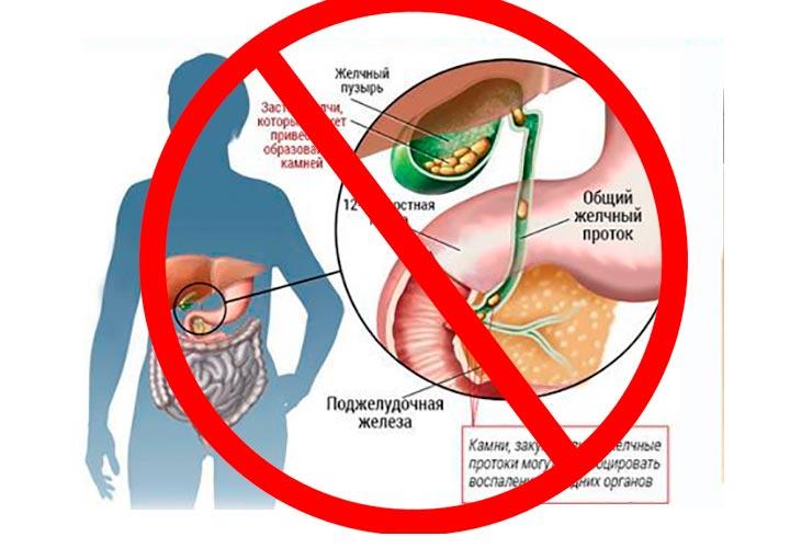 Нельзя проводить СМТ процедуру на области желчного пузыря при наличии в нем камней