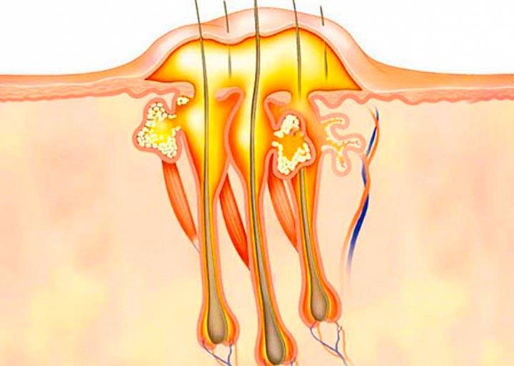 Карбункул - причина шишки на шее