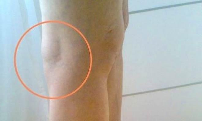 Киста Беккера в коленном суставе