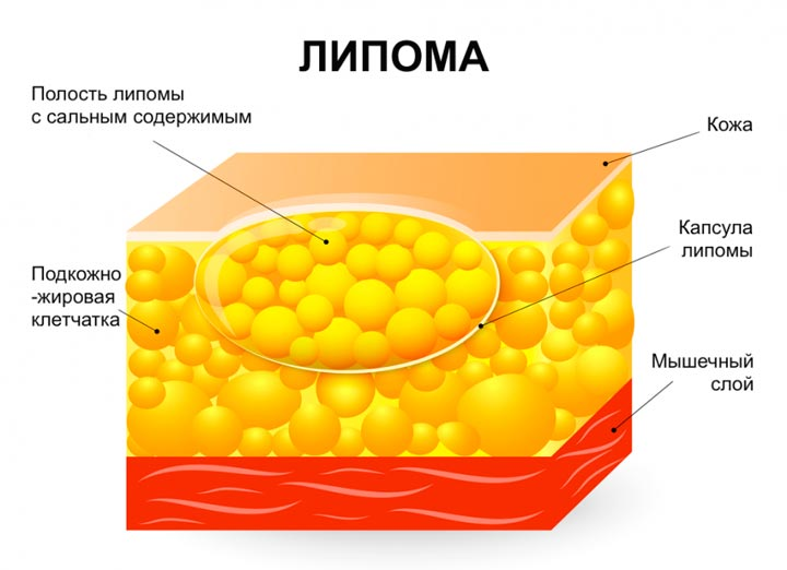 Липома - причина шишки на шее