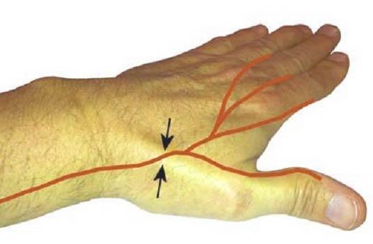 Иннервация лучевым нервом