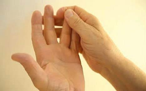 Онемение в мизинце и безымянном пальцах