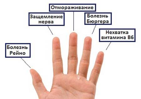 Причины онемения кончиков пальцев