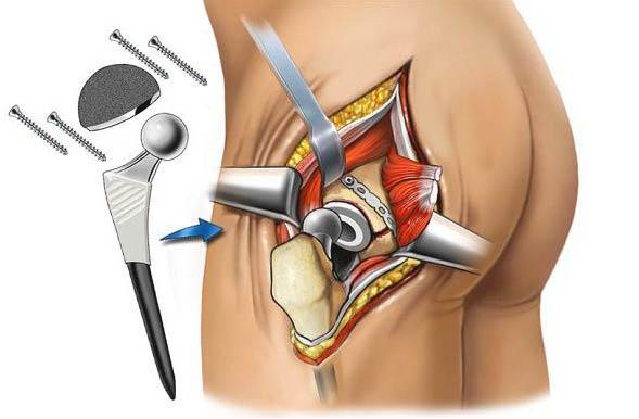 Оперативное лечение тазобедренного сустава