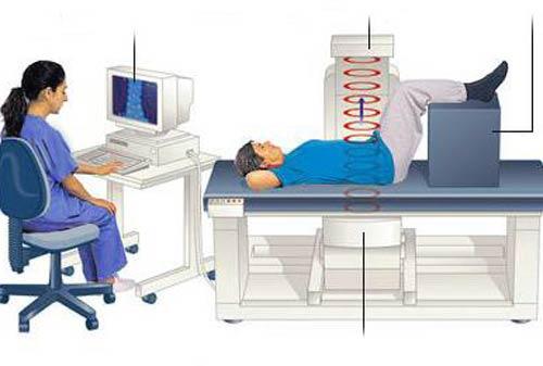 Рентгенологическая денситометрия