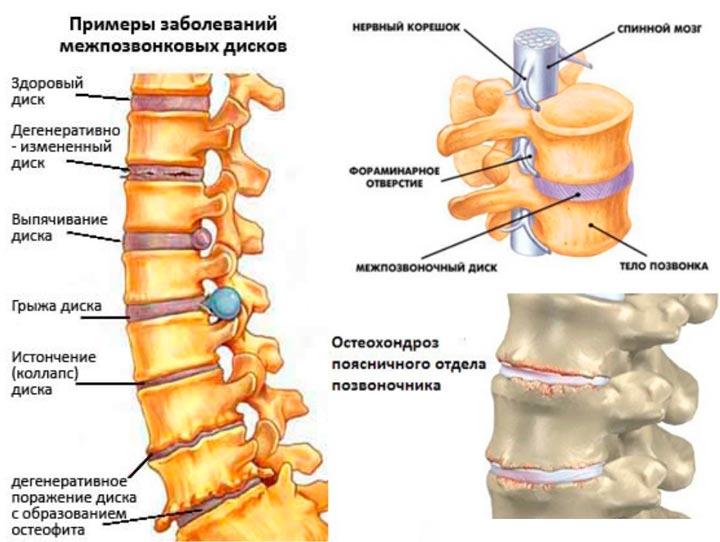 Корсет используется при остеохондрозе